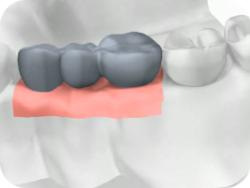 имплантанты зубов в челябинске