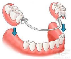 замена зубов
