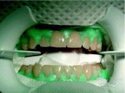 Химическое отбеливание зубов в домашних условиях или в стоматологии