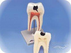 лечение кариеса, кариес зубов