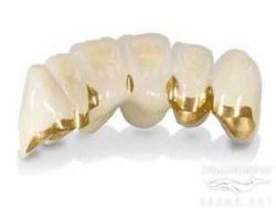 зубы металлокерамика