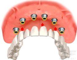имплантант зуба в челябинске