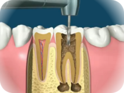 пульпит лечение, пульпит зуба