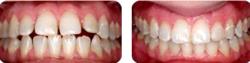 ортодонт стоматология