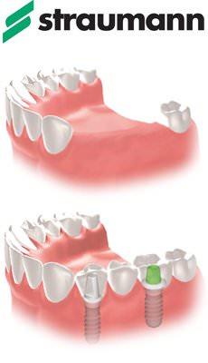 имплантация зубов в Челябинске от фирмы Straumann Швейцария